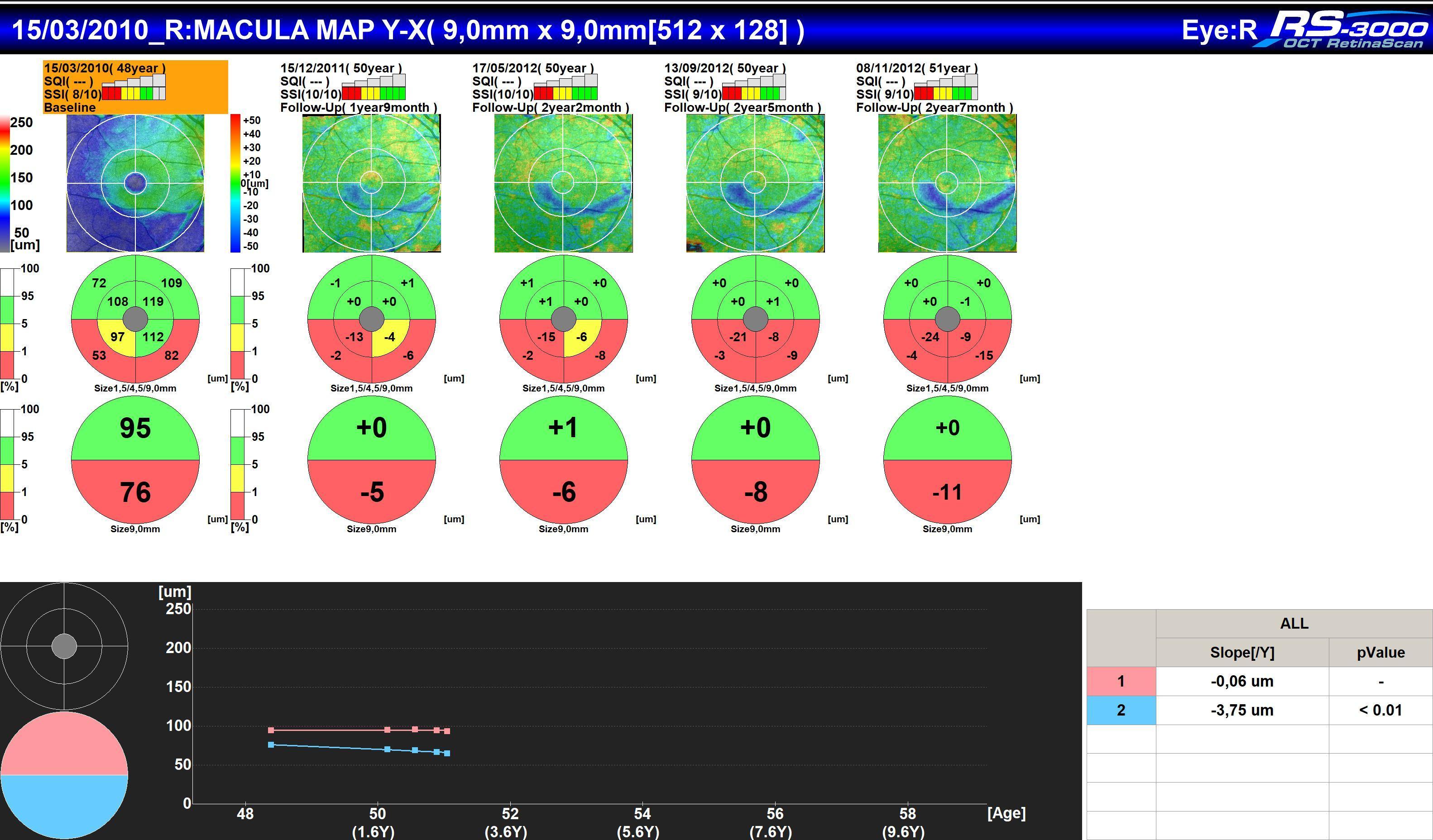 Analyse Follow-Up en OCT Macula Map