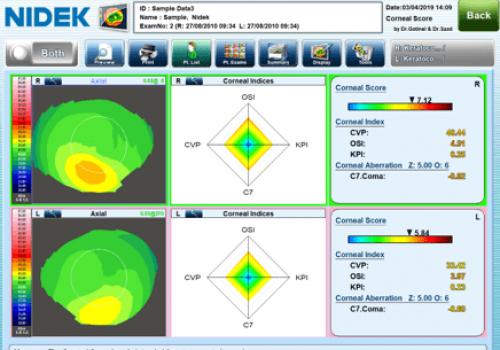 Image11 corneal score