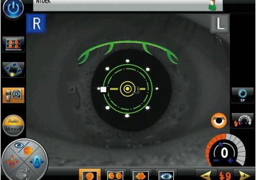 Alignement automatique sur la pupille avec suivi