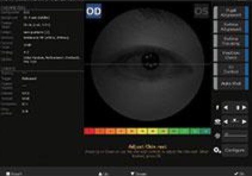 Auto Tracking antérieur et mise au point automatique sur le fond d'œil