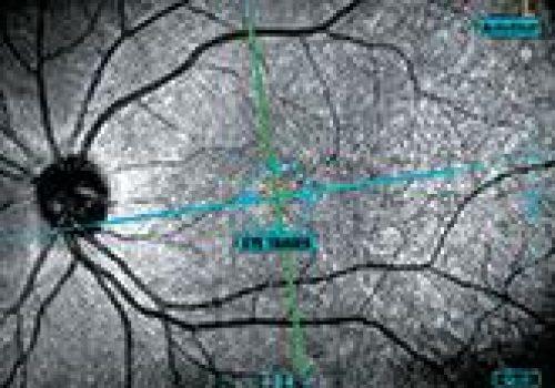 Tracking SLO en OCT