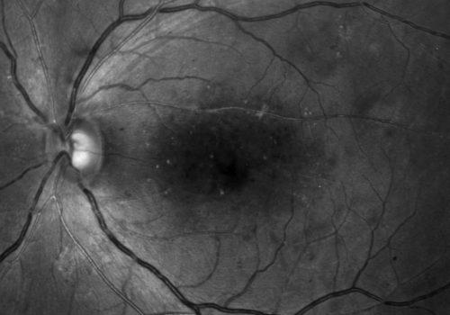 Image bleue – Tête du nerf optique et des fibres nerveuses