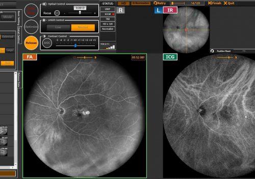 Ecran d'acquisition an angiographie simultanée FA et ICG avec IR en temps réel