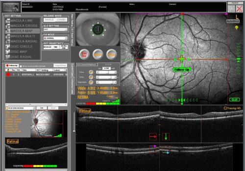Examen de Follow-Up avec reconnaissance de la rétine et repositionnement du scan