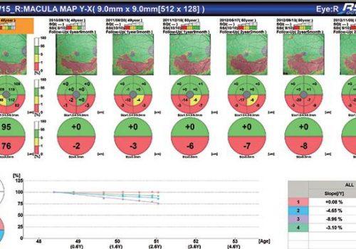 Analyse Follow-Up comparative sur Macula Map, complexe des cellules ganglionnaires