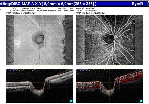 Analyse comparative OCT En Face / OCT-A / B-scan sur Papille