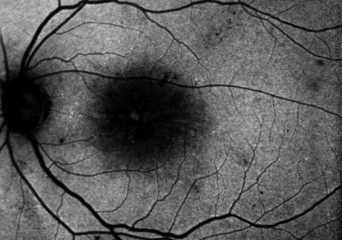 Autofluorescence Bleue – Zone maculaire masquée mais tête du nerf optique plus visible