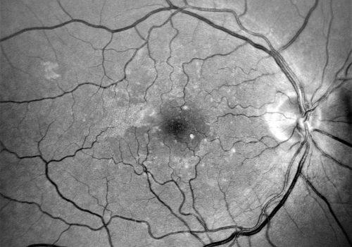 Image verte – Réseau vasculaire (hémorragies, anévrismes…)