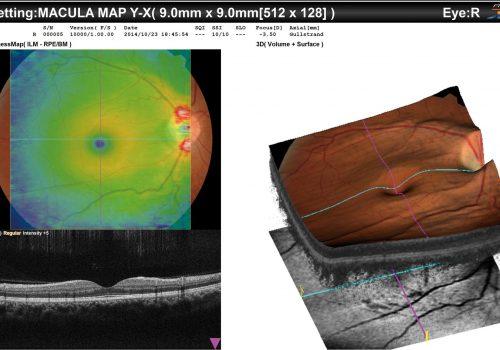 Représentation en 3D du Macula Map