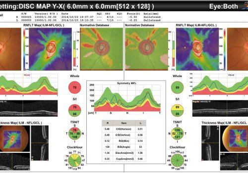 Cartographie RNFL avec BDN sur 6x6mm (Glaucome)