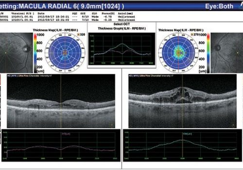 Résultat du Macula Radial OD/OG avec épaisseur de rétine
