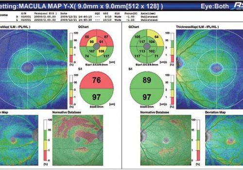 Epaisseur du complexe des cellules ganglionnaires avec BDN sur 9x9mm (Glaucome)