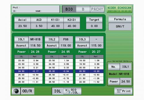Calculateur de LIO personnalisé